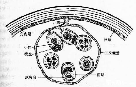 棘球蚴病又称为包虫病。包虫病是人感染棘球绦虫的幼虫(棘球蚴)所致的慢性寄生虫病。本病的临床表现视包虫囊部位、大小和有无并发症而不同。长期以来,包虫病被认为是一种人畜共患寄生虫病,称之为动物源性疾病。根据近年来流行病学调查,称之地方性寄生虫病;在流行区带有职业性损害的特点,被列为某些人群的职业病;从全球范围讲包虫病为少数民族或宗教部落所特有的一种常见病和多发病。 一、病因 本病是种严重的人畜共患的疾病,我国包虫病高发流行区主要集中在高山草甸地区及气候寒冷、干旱少雨的牧区及半农半牧区,以新疆、青海、甘肃、宁夏